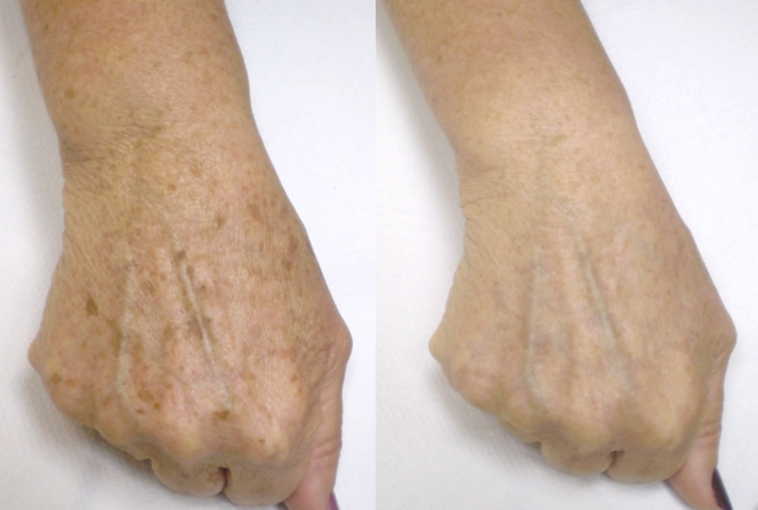 before and after using a dark spot remover on hands