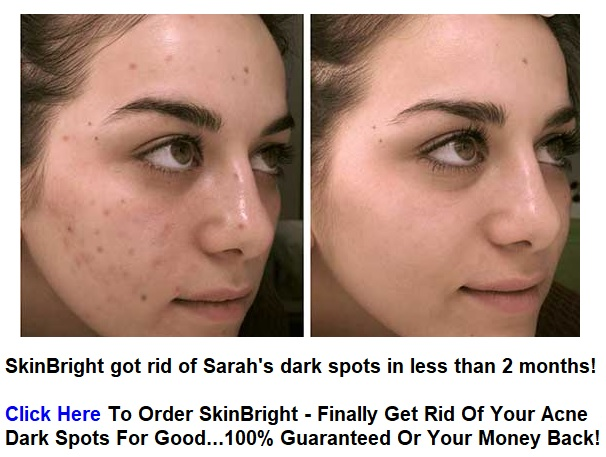 Natural Ways To Get Rid Of Dark Spots From Acne