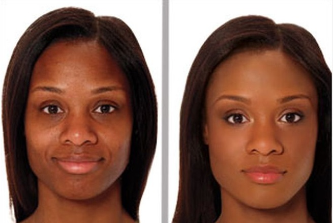before and after using a dark spot remover for black skin
