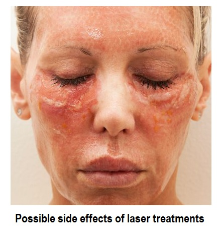 laser treatment side effects